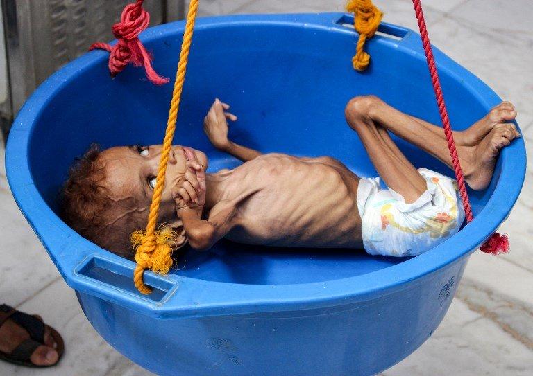 虛弱到哭不出來 葉門8.5萬兒童死於饑餓與疾病