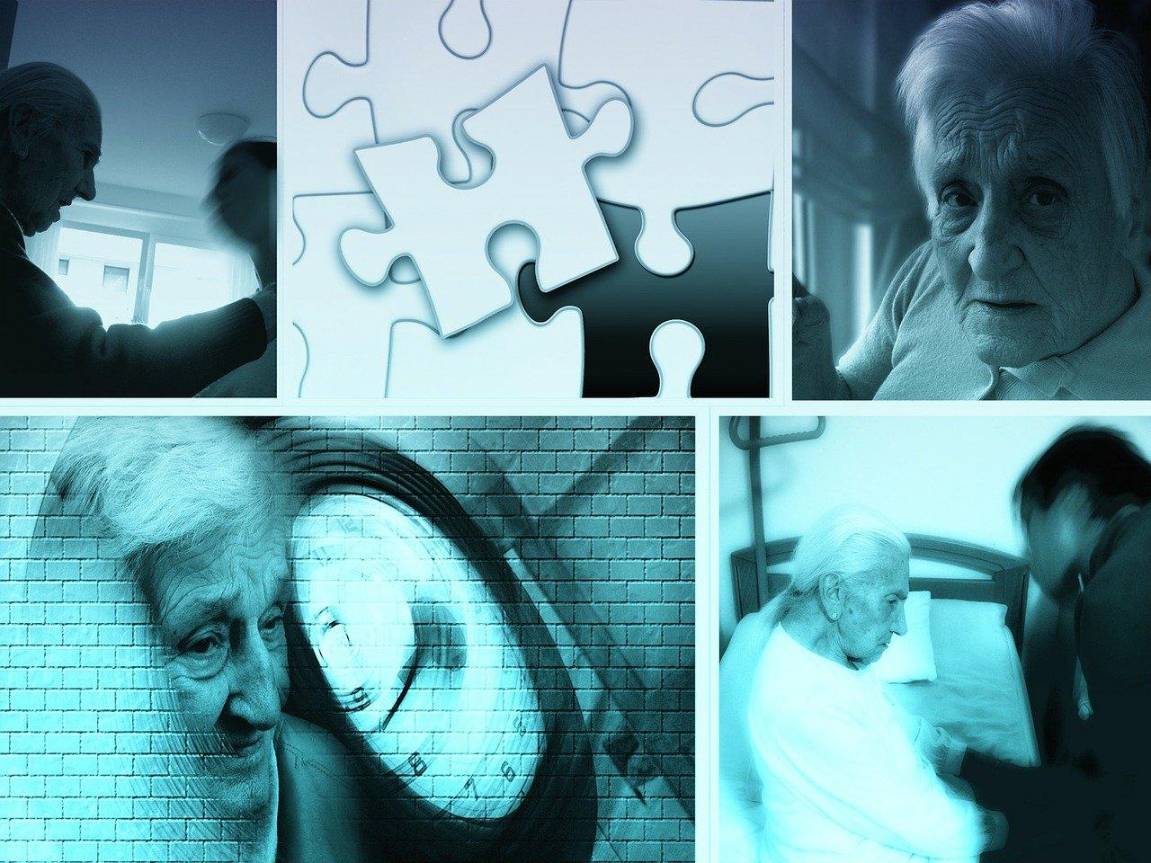 醫師:罹COVID-19 恐增早發性失智與帕金森氏症機率