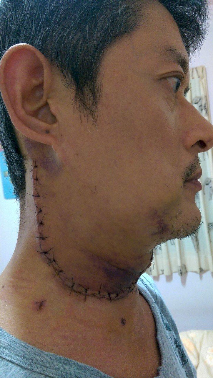 頭頸癌6成確診已末期 醫師籲勿延遲治療 (影音)