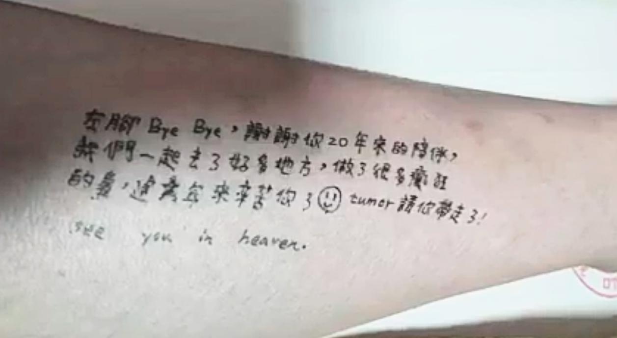 清大生患骨肉癌 截肢前在左腿寫上「謝謝20年來的陪伴」